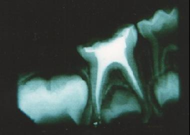 ROOT CANAL TREATENT FOR KIDS