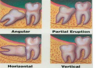 REMOVAL OF WISDOM TOOTH