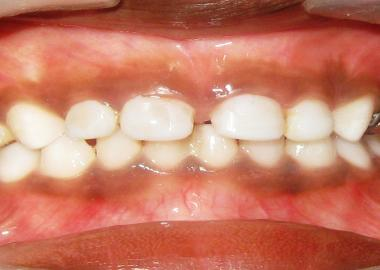 TOOTH COLOR FILLING LIGHT CURE COMPOSITE FILLING