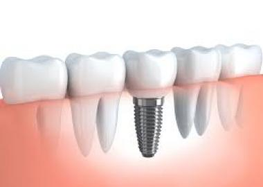 IMPLANTS FIX TEETH