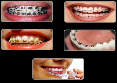 Braces for irregular teeth all types