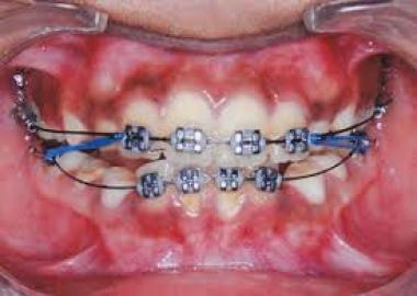 Special Braces for kids